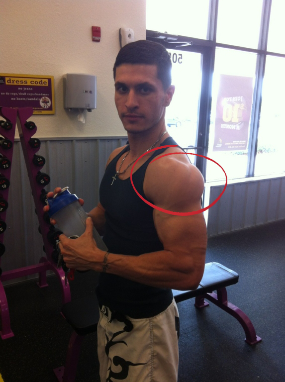 Alain's Shoulder
